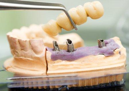Photo pour Un dentiste technicien dentaire pose la prothèse partielle fixe (le pont dentaire) sur les implants . - image libre de droit