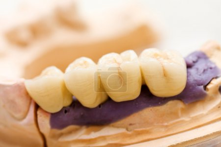 Photo for Fixed partial denture ( dental bridge ) on dental implants - photo taken in dentist 's office , technician 's laboratory - Royalty Free Image