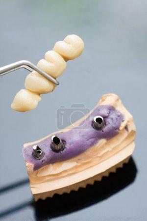 Photo pour Technicien dentaire placer la prothèse partielle fixe (le pont dentaire) sur les implants - image libre de droit