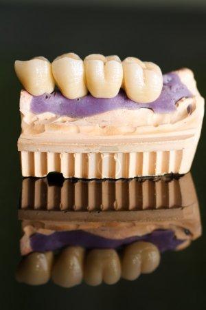 Photo pour Prothèse partielle fixe (pont dentaire) sur implants dentaires - photo prise dans le cabinet du dentiste - image libre de droit
