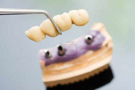 Photo pour Technicien dentaire plaçant la prothèse partielle fixe (le pont dentaire) sur les implants . - image libre de droit