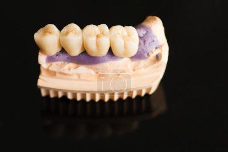 Photo pour Prothèse partielle fixe (pont dentaire) sur implants dentaires - photo prise dans le cabinet du dentiste / laboratoire du technicien - image libre de droit