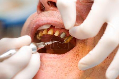 Photo pour Un dentiste place un fil / fil de rétractation dans le sulcus dentaire avant de prendre une empreinte . - image libre de droit