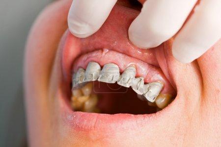 Photo pour Un dentiste de tester l'efficacité du pont dentaire avant de finir la prothèse partielle fixe - série. - image libre de droit