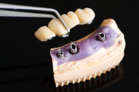 Photo pour Un dentiste / prothésiste placer la prothèse partielle fixe (le pont dentaire) sur les implants. - image libre de droit