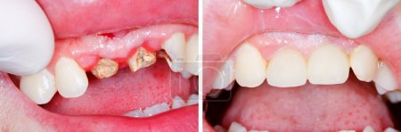 Teeth root rest before and after treatment