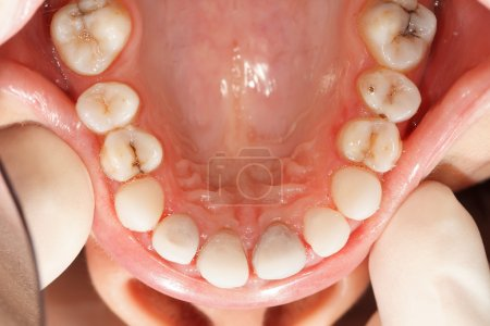 Zircon teeth rare angle