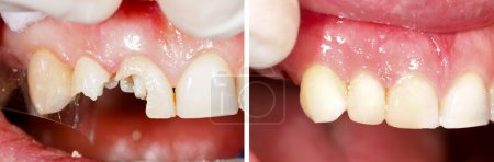 Destructed teeth filling