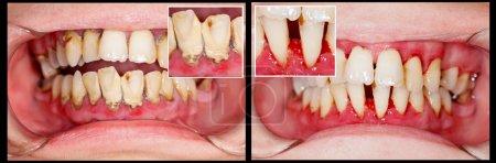 Photo pour Denture humaine sur le traitement dentaire - partie de la série précédente . - image libre de droit