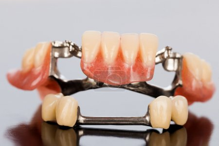Photo for The illsutration of a specially fixed dental partial prosthesis with porcelain crowns and dolder. - Royalty Free Image