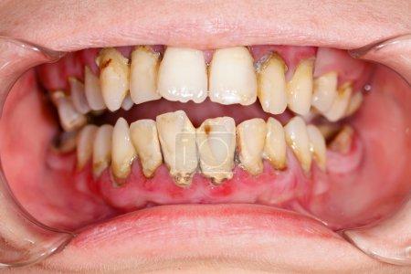 Photo pour Bouche humaine avant la plaque de traitement dentaire sur les dents . - image libre de droit