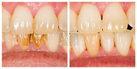 Photo pour Traitement avant et après le retrait de la plaque dentaire . - image libre de droit