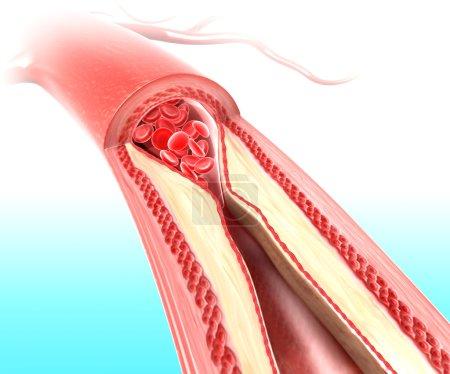 Photo pour Athérosclérose dans l'artère causée par la plaque de cholestérol - image libre de droit