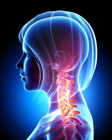 Photo pour Illustration de rendu 3D de cervicalgie femelle en bleu - image libre de droit