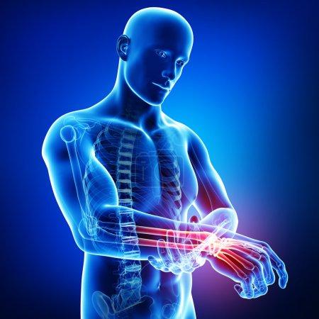 Hand pain anatomy