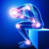 Anatomie bolesti celého těla