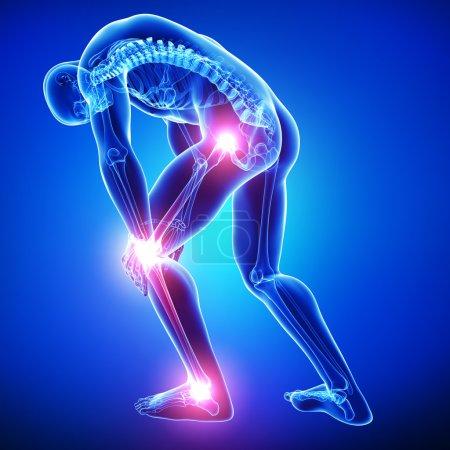 Photo pour Douleur au genou mâle - image libre de droit