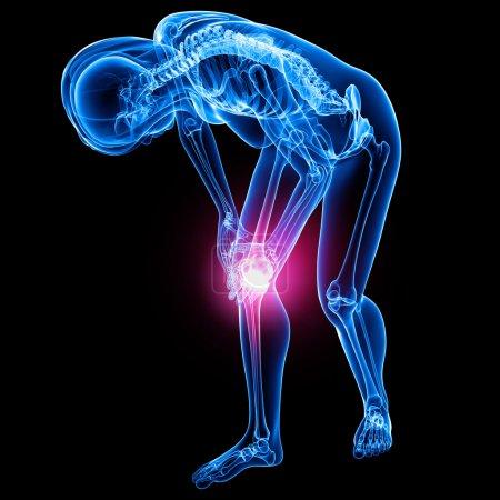 Photo pour Douleur au genou féminin - image libre de droit