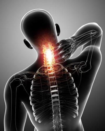 Photo pour Radiographie de la douleur au cou - image libre de droit
