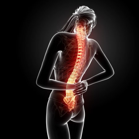 Illustration of human back pain with highlighted spinal cord