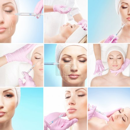 Collage of some different images with the botox injections