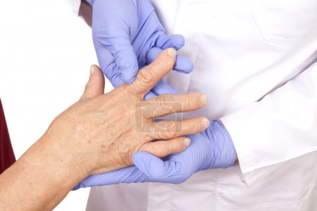 Senior woman with Rheumatoid arthritis visit a doctor