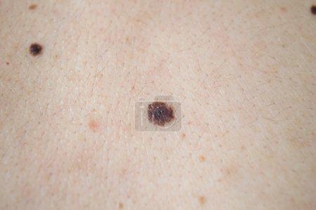 Photo pour Mélanome, cancer de la peau, sur le dos d'un homme - image libre de droit