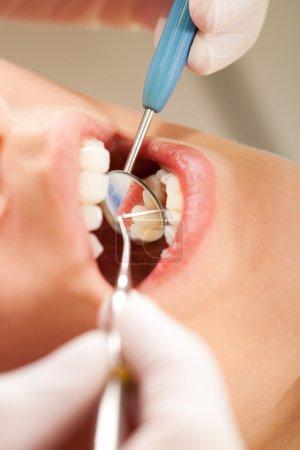 Photo pour Dentiste vérifie les dents du patient pour la plaque et la carie - image libre de droit