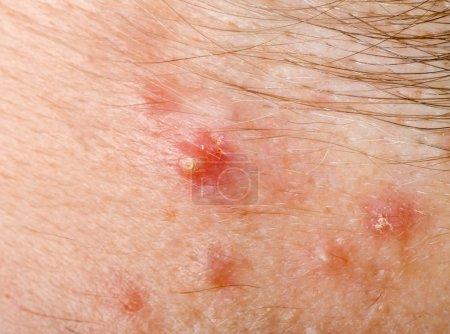 Pimple on human skin macro