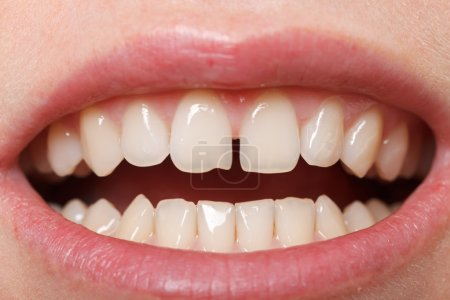 Diastema between the upper incisors