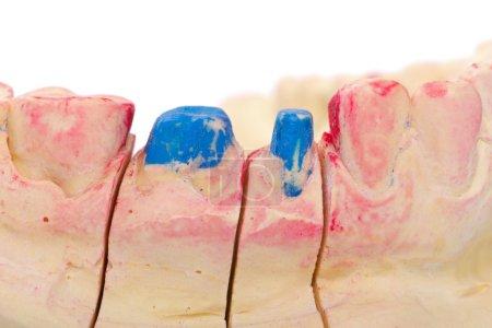 Photo pour Dents polies avec épaule sur le modèle en plâtre - image libre de droit