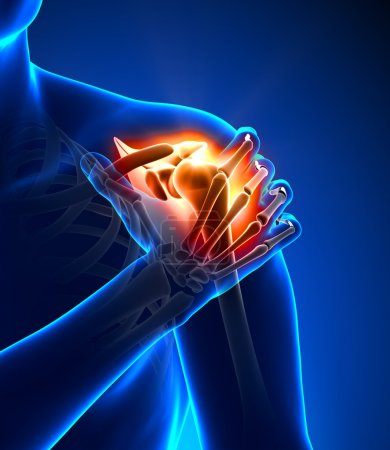 Photo for Shoulder pain - detail - Royalty Free Image