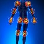 Joints pain - full figure