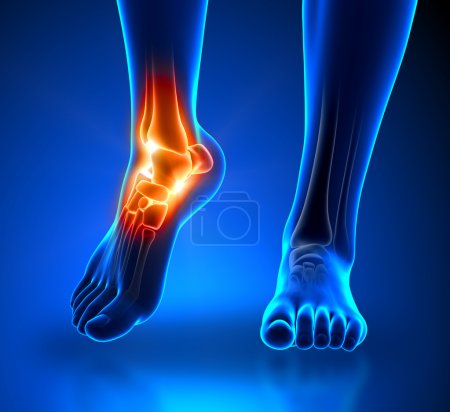 Photo for Ankle pain - detail - Royalty Free Image