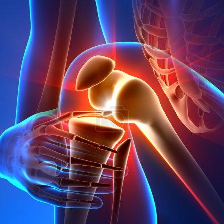 Photo pour Genou douleur - rayons d'anatomie - image libre de droit