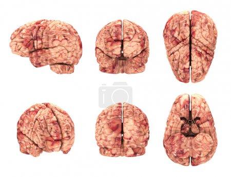 Anatomy Brain - 6 Views Isolated on White
