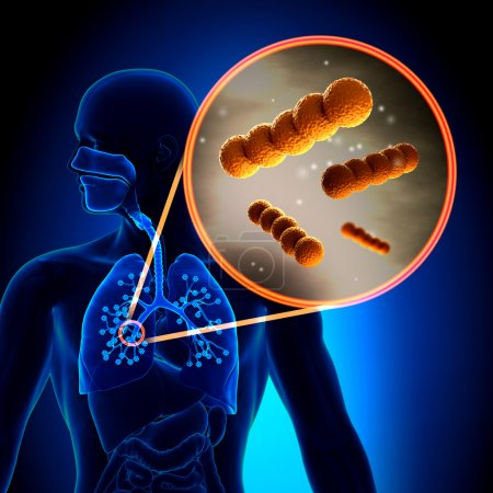 Streptococcus -  Spherical Gram-positive bacteria