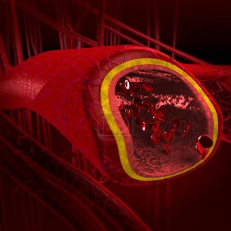 Blood arteries