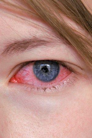 Photo pour Fermer à la photographie de le œil infecté. - image libre de droit