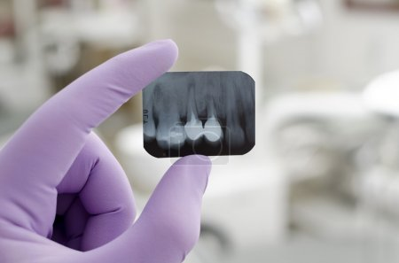 Photo for Doctor holding and looking at dental x-ray - Royalty Free Image