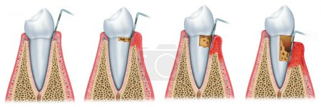 Photo pour Séquence et évolution de la parodontite - image libre de droit