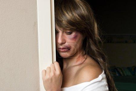 Photo pour Femme avec des ecchymoses victime de violence domestique ou d'un accident caché derrière un mur - image libre de droit
