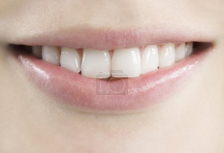 Close up of a young woman's perfect smile.