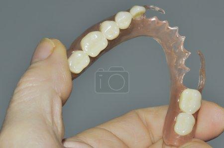 Flexible prosthesis 9