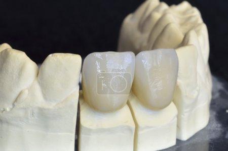 Upper incisors in zirconium