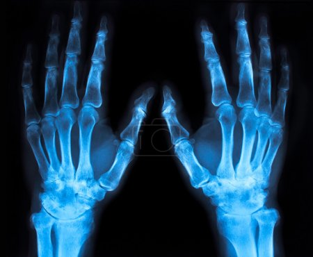 x-ray of an hand (blue)