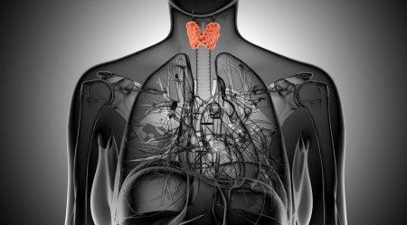 x-ray  illustration of the female thyroid gland