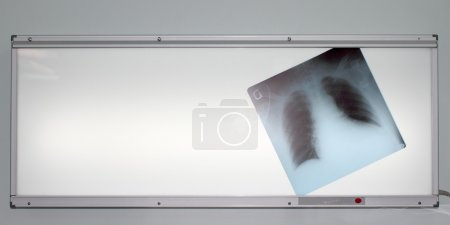 X-ray of the lungs on negatoscope