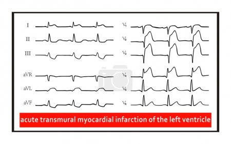 ECG. Acute transmural myocardial infarction of the left ventricle