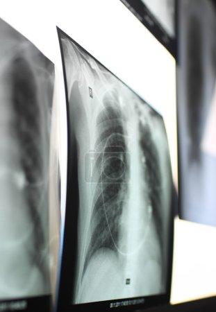 Photo pour Rayons X des poumons, entourés d'autres clichés situés sur la boîte à rayons X . - image libre de droit